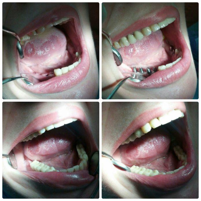 Installazione di protesi su denti da masticare