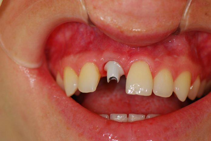 Corone di denti