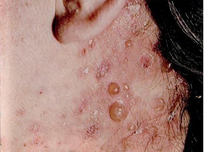 Dermatite Dühring