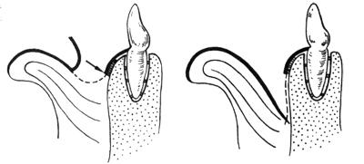 Briglia in frenuloplastica