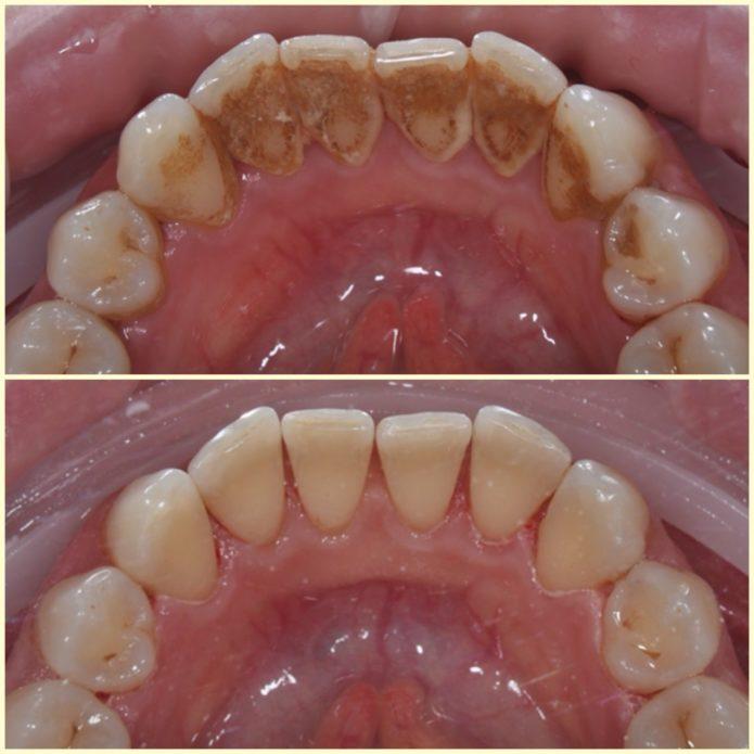 Carie di carie dentaria